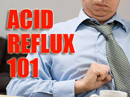 acid reflux 101