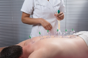 Cupping, Male Patient, Purchased